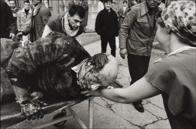 a-wounded-man-is-brought-to-kosovo-hospital-january-1994